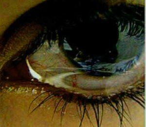 Crying Eyes Whatsapp Dp download Pics